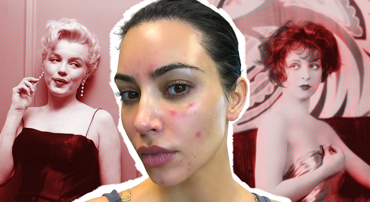 Salt: главное здесь, остальное по вкусу - Само несовершенство: как знаменитости рассказывают о проблемах с кожей и почему это важно