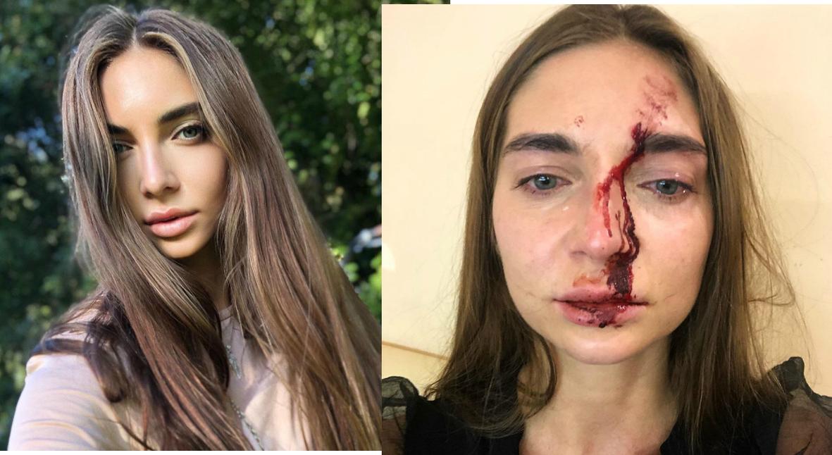 Salt: главное здесь, остальное по вкусу - Врач-косметолог избила девушку в московском салоне красоты