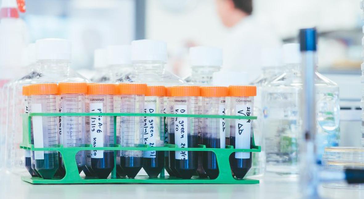 Salt: главное здесь, остальное по вкусу - Стартап создал технологию окрашивания тканей с помощью бактерий — проект уже поддержали H&M